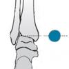 Ankle marker position