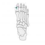 Foot marker position