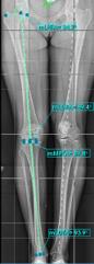 Limb Deformity Correction wizard