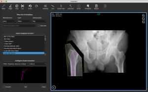Hip Arthroplasty Templating Software