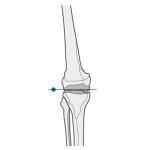knee marker position