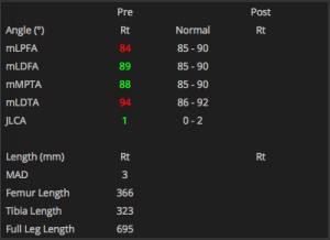 Limb Deformity Correction measurements